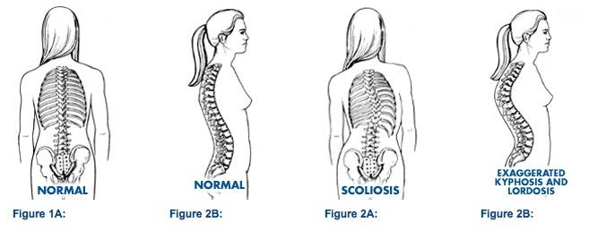 Chiropractor Scoliosis