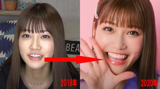 めるるの歯を比較