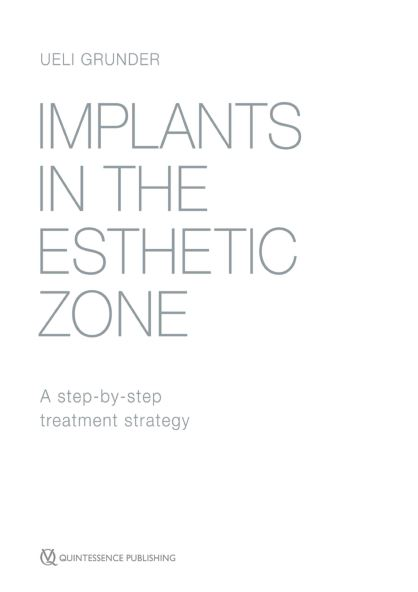 Dental Library-Implants in the Esthetic Zone: A Step-by