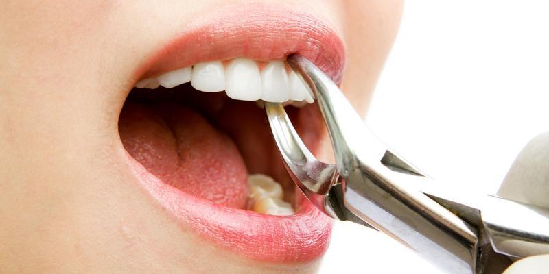 Berhati-hatilah Sebelum Cabut Gigi