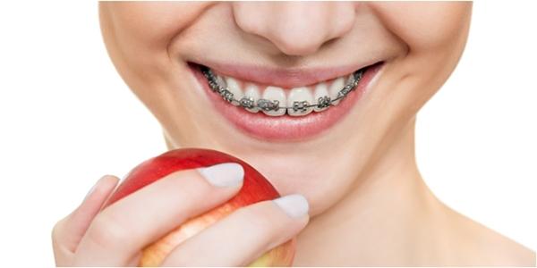 5 Dampak dari Pemasangan Kawat Gigi Yang Perlu Diketahui