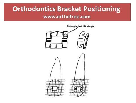 Orthodontics Bracket Positioning
