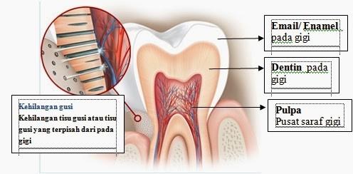 Gigi Anda Terlalu Sensitif? Cari Penyebab Dan Solusinya!