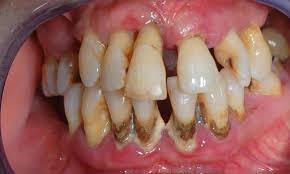 Kondisi Rongga Mulut Penderita Diabetes