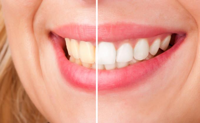 Dijamin! Gigi Putih Bersinar Kurang dari 2 Menit
