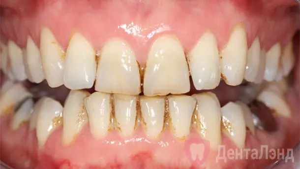 Before-Чистка зубов ультразвуком