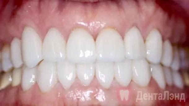 After-Полная реставрация зубов винирами
