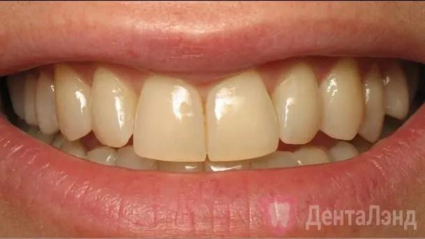 Before-Отбеливание зубов методом ZOOM