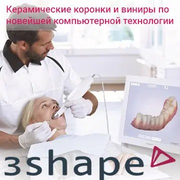 Керамические коронки и виниры по новейшей компьютерной технологии 3shape