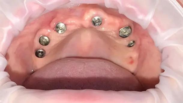 Before-Имплантаты осстем, верхняя челюсть несъемный мост из диоксида циркония