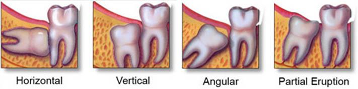 impaktirani zubi