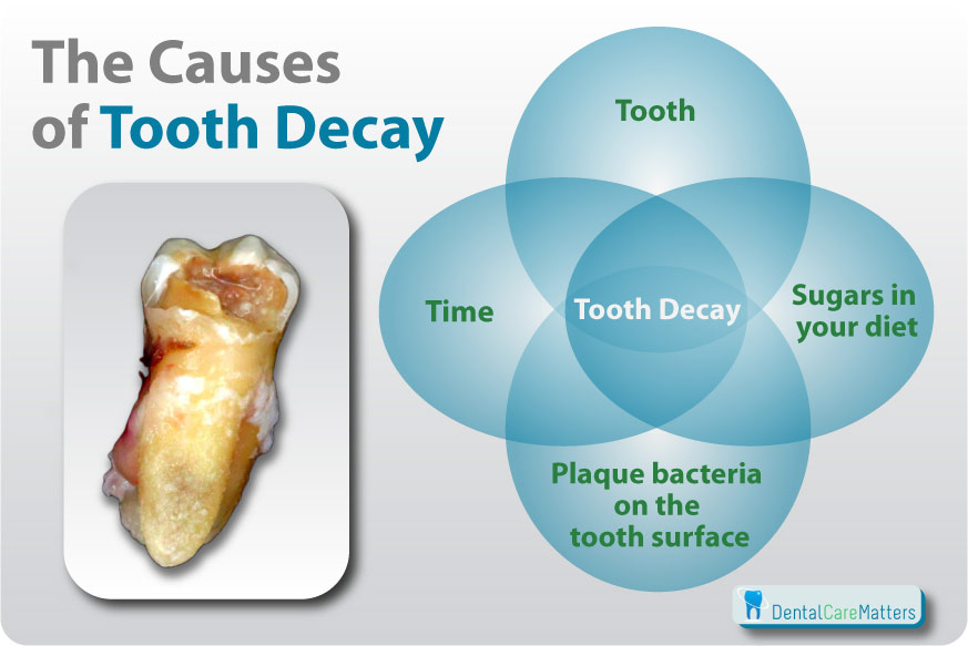 Tooth Decay - A Complete Guide