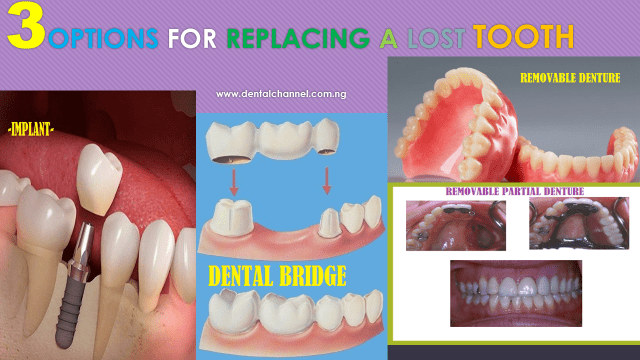 Blog Articles  News Archives  Dental Channel NG