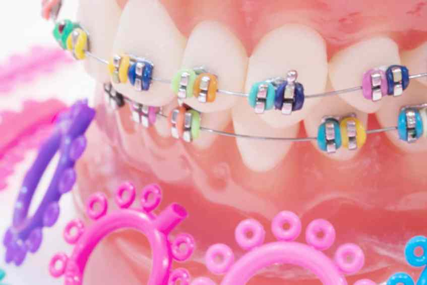 Orthodontic Treatments in İstanbul