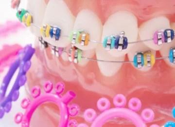 implantakademi-implant-dentalclinicsturkey-dentist-orthodentist