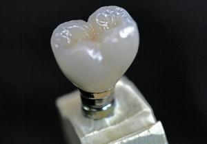 Custom Cast Abutment Crown Occl. 30