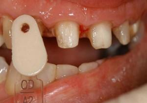Opacious dentin prep shade