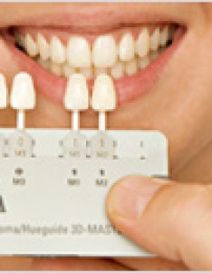Zirconia crown shades also find out the shade needed for your new crowns bridges veneers abroad rh dentalholiday