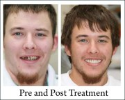 All-On-4 Dental Implant Treatment