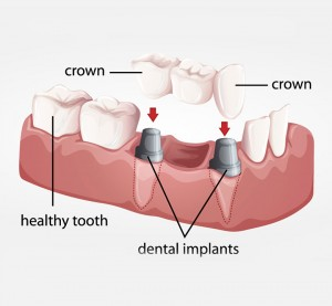 Bridge implant - Dental Implants Vacations