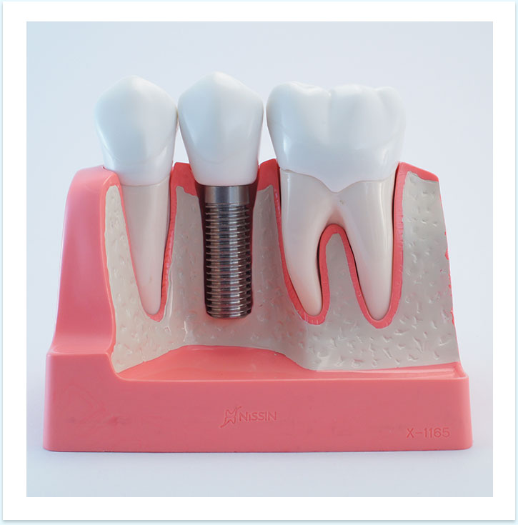 Titanium Dental Implants in Cancun