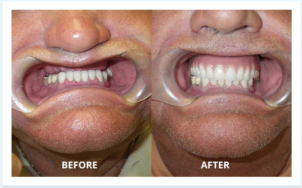 all-on-4-before-after-dental-implants
