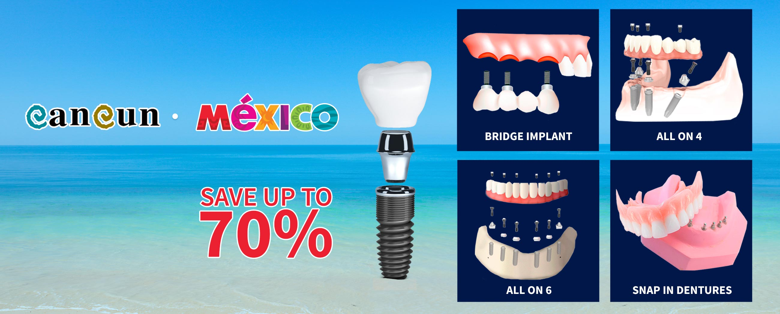 banner-home-1-dental-implants-vacations