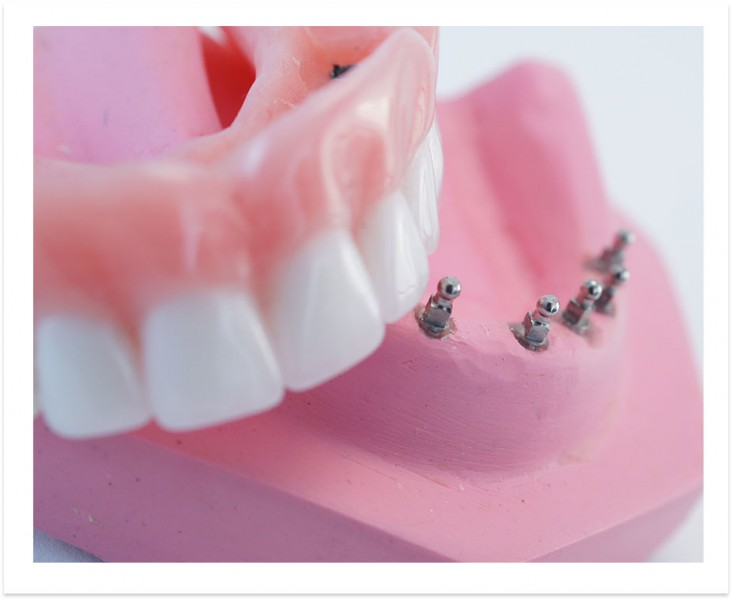 Mini implants and Snap in Denture