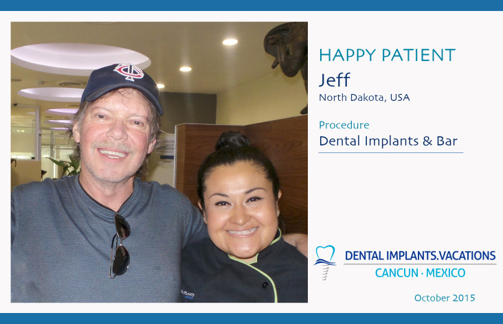 Jeff-Selle Dental Implants in Cancun