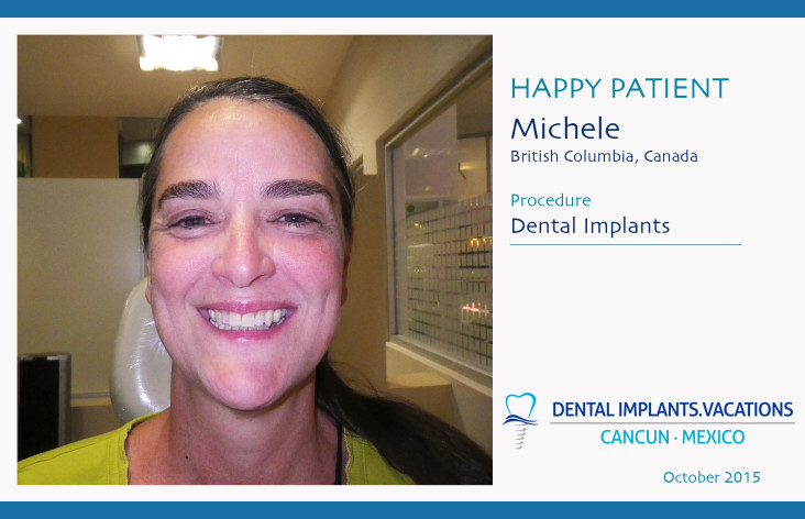 Dental Implants in Cancun
