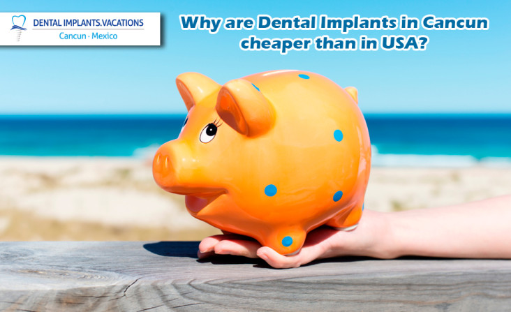 Why are dental implants in Cancun cheaper than in USA?