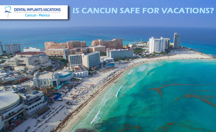 Cancun is safe to get Dental Implants on Vacations (photo by dronepicr)