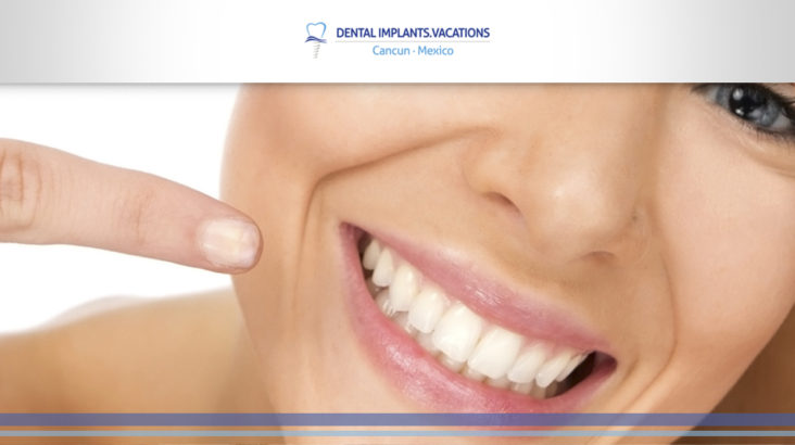ways to take care of your dental implants