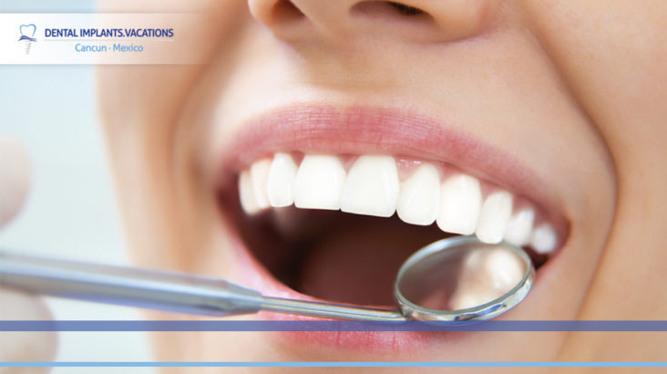 Myths about dental health