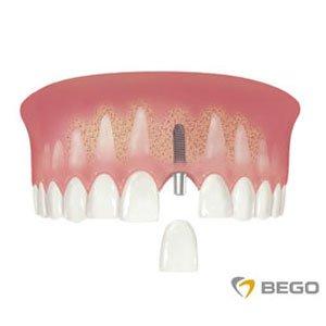 uzupełnienie pojedynczego zęba