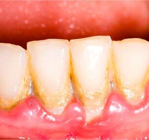 piaskowanie i scaling zębów