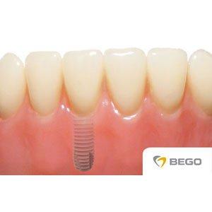 implanty zębowe - wizualizacja
