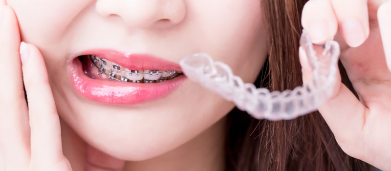 8 Teeth Problems And Reasons Why You Should Opt For Braces