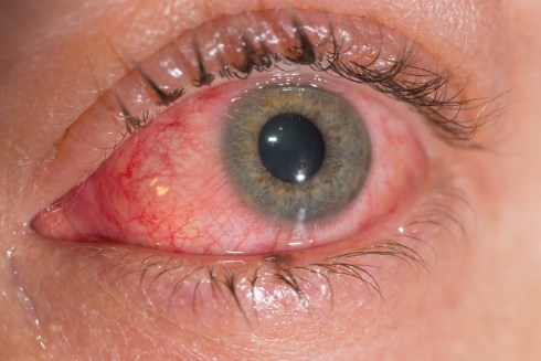 Top 7 Most Common Eye Conditions Symptoms And Treatments