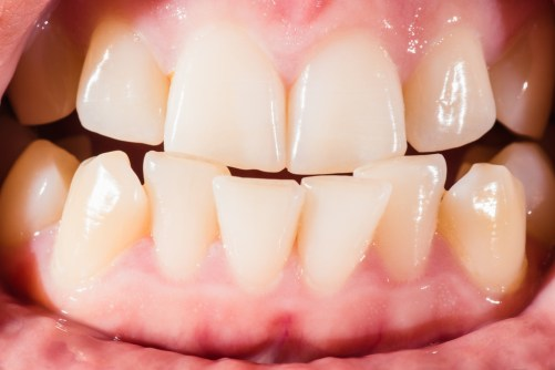 Malocclusion Its Causes Symptoms Prevention And Treatments