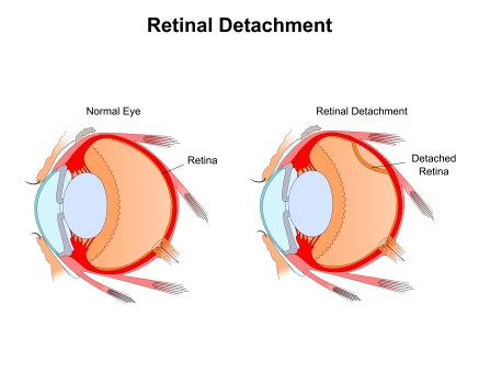 Retinal Detachment Causes Symptoms Types And Treatments