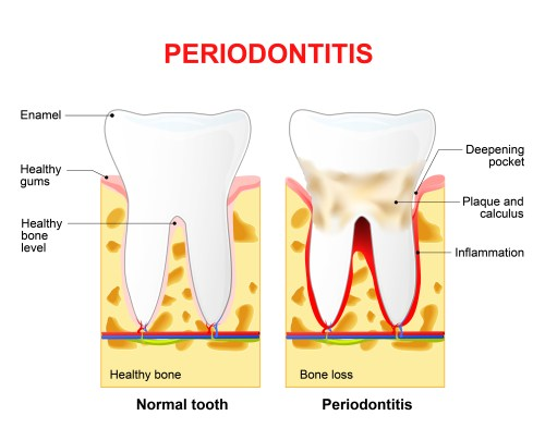 Pyorrhoea (Periodontitis) Advanced Stage Of Periodontal Disease