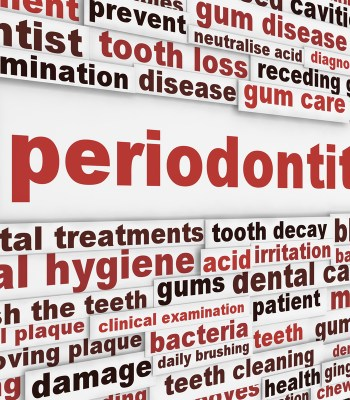 Gingivitis Causes Symptoms Prevention And Treatment