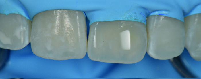 caso clinico de producto icon  Alternativa Microinvasiva, Tratamiento estético para Manchas Blancas 3 08