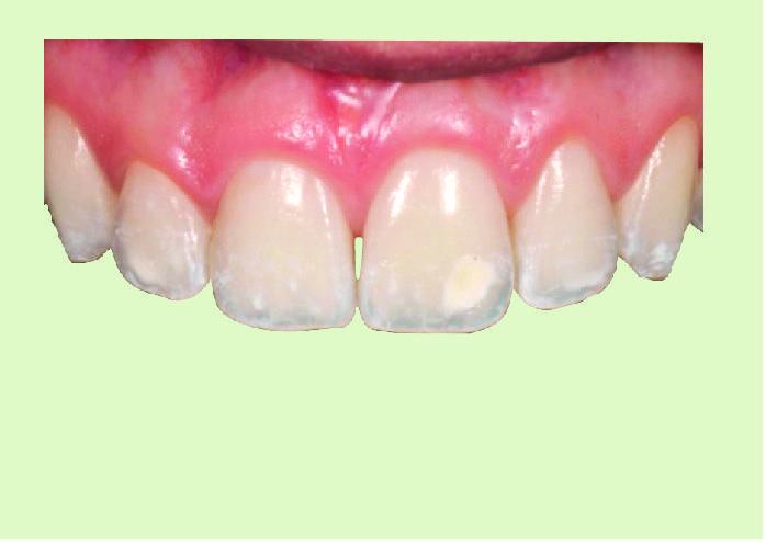 caso clinico de producto icon  Alternativa Microinvasiva, Tratamiento estético para Manchas Blancas ConManchas 09