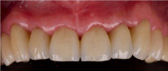 Bienestar biológico, funcional y estético en paciente con lesiones cervicales no cariosas mediante restauraciones cerámicas CasoCli  nico2