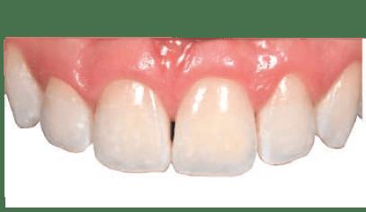 Alternativa microinvasiva, tratamiento estético para manchas blancas. despues