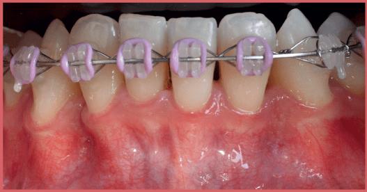 Injerto gingivial libre en tratamiento multidisciplinario CasoClinico 1