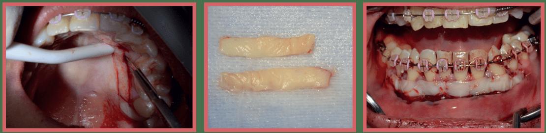 Injerto gingivial libre en tratamiento multidisciplinario CasoClinico 2
