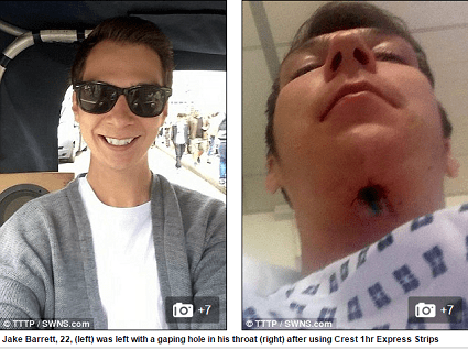 Man has hole in throat from Whitestrips